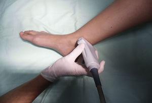 Posición del paciente y del transductor para bloqueo del nervio tibial. Fuente: autores.