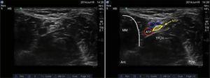Imagen por ultrasonido del nervio tibial. ATP: arteria tibial posterior; MM: maléolo medial; NTP: nervio tibial posterior; TFLH: tendón flexor largo del hallux. Fuente: autores.