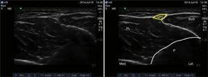 Imagen por ultrasonido del nervio peroneo superficial. ELD: extensor largo de los dedos; NPS: nervio peroneo superficial; P: peroné; PL: peroneo largo. Fuente: autores.