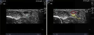 Imagen por ultrasonido del nervio sural. P: peroné; NS: nervio sural; VP: Vaina peroneal; VSm: Vena safena menor. Fuente: autores.
