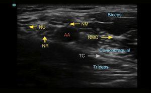 Imagen ecográfica del plexo braquial a nivel axilar. AA: arteria axilar; NM: nervio mediano; NMC: nervio musculocutáneo; NR: nervio radial, TC: tendón conjunto; NU: nervio ulnar.