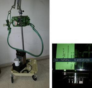 Respirador Bird Mark 7 y el nebulizador ultrasónico usado para la atención del Dr. Villegas. En la parte superior, la marca de su propietario, el Dr. Sarmiento.