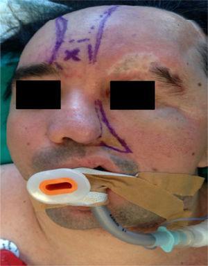 Imagen frontal del paciente que muestra la hemiatrofia facial izquierda, placa de atrofia en la ceja izquierda, contracción del globo ocular, prótesis ocular izquierda. Líneas de demarcación del colgajo frontonasal.
