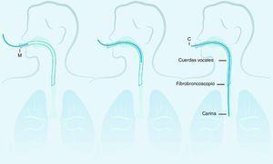 Distancias medidas por fibrobroncoscopio. C: distancia desde el borde proximal del adaptador del tubo orotraqueal a la carina; M: distancia desde el borde proximal del adaptador del tubo orotraqueal al ángulo derecho de la boca. Fuente: autores.