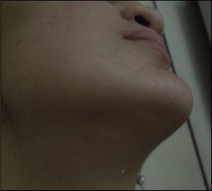 Cicatrización de la herida submentoniana, un año y 11 meses posteriores al procedimiento realizado. Fuente: Hospital Nacional de Niños, San José, Costa Rica.
