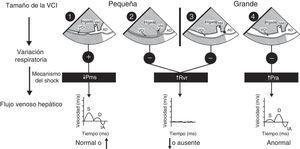 Mecanismo del shock. Algoritmo para determinar el mecanismo del shock con base en el tamaño de la vena cava inferior (VCI), la variación respiratoria durante la ventilación espontánea y el flujo venoso hepático (FVH). (Véanse los detalles en el texto).AD: aurícula derecha; D: velocidad diastólica del FVH; IA: inversión auricular de la velocidad del FVH; S: velocidad sistólica del FVH; Pms: presión arterial sistémica media; Pra: presión auricular derecha; Rvr: resistencia al retorno venoso; VH: vena hepática. Fuente: con autorización de Denault et al.11.