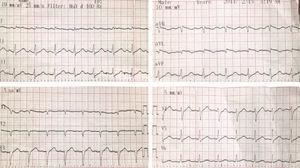 Electrocardiograma de ingreso. Elevación del segmento ST de 0,2mV en aVL y de 0,1mV en DI con descenso de este en las derivadas de la pared inferior.
