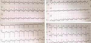Electrocardiograma de días posteriores. Patrón de repolarización precoz en DII, DIII, aVF, llamando la atención la forma de elevación del segmento ST en forma de vela.