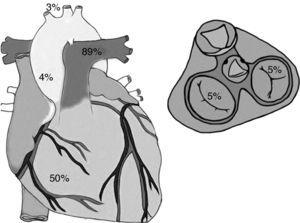Porcentaje de lesiones cardiacas relacionadas por área anatómica: el ventrículo derecho 50% de los casos, la válvula tricúspide 5% de los casos, el ligamento arterioso 89% de los casos, la aorta ascendente 4% de los casos y los troncos supraórticos 3% de los casos.
