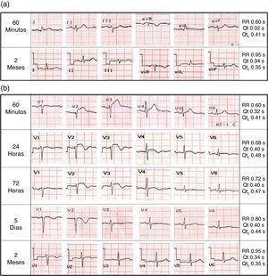 Seguimiento electrocardiográfico. (a) Derivaciones extremidades, sin anormalidades durante todo el seguimiento. (b) Derivaciones precordiales, mostrando la evolución en el tiempo de los trastornos de repolarización. El intervalo QT medido manualmente en la derivación con mayor prolongación (V2), fue anormal solo en el trazo de las 24 horas.