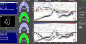 Análisis de strain longitudinal global por segmentos.