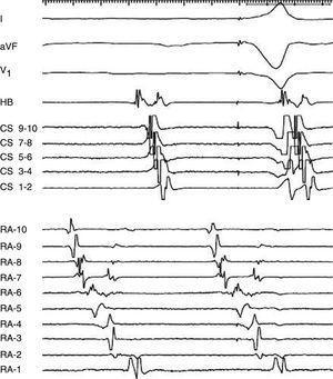 Reentrada de pared libre de la aurícula derecha: los potenciales dobles en la pared lateral reflejan frentes de onda descendiendo y ascendiendo con estrechamiento de los intervalos entre los potenciales dobles dirigiéndose hacia la pared lateral y un electrograma fragmentado reflejando un punto de giro en el electrodo RA-6 (RA-1, lateral bajo AD; RA-10 lateral alto AD).