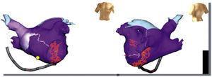 Ablación del istmo mitral. En un paciente con flutter atrial izquierdo por macrorreentrada perimitral se realizó ablación del istmo mitral desde la vena pulmonar inferior izquierda hasta la válvula mitral (puntos rojos).