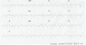 Electrocardiograma de 12 derivaciones. Taquicardia ventricular polimórfica bidireccional.