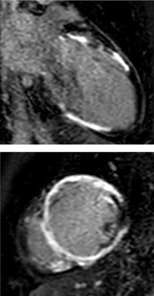 RMN cardiaca. Eje transversal. Realce tardío. Edema miocárdico y depósito focal de gadolinio transversal en los segmentos mediales ventriculares.