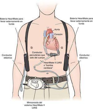 Componentes del HeartMate II. (Tomado de HeartMate II Sistema de Asistencia Ventricular Izquierda. Manual de Operación. Thoratec Corporation).