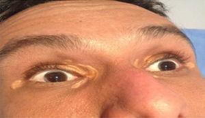 Imagen de arco corneal y xantelasmas en un paciente menor de 45 años.