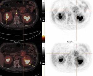 PET-TC con captación renal y vascular (flechas).