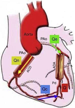 Modelo de la circulación coronaria: donde Qe indica el flujo hiperémico con estenosis, Qn es el flujo hiperémico sin estenosis, y Qc es el flujo colateral. Q va a ser la suma del flujo anterógrado a través de la estenosis (Qe) y el flujo colateral (Qc). Entonces el FFR es igual a Q/Qn es decir Pd/PAo. En esta gráfica se representa el flujo sanguíneo colateral (Qc), el cual afecta el resultado del FFR; sin embargo, también podría medirse la suplencia colateral por FFR como ya se explicó en el texto. Si no existiera estenosis de la arteria descendente anterior (ADA), Q sería igual a 0, Qe sería igual a Qn, así como Pd sería igual a PAo. Presión aórtica (PAo), Presión distal (Pd), Arteria coronaria derecha (ACD) (Modificado de Circulation. 2006;113:446-455)22.