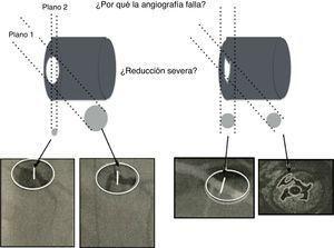 La ilustración muestra el uso regular de la intervención por angiografía rotacional y reconstrucción tridimensional, así como la complejidad anatómica del lumen ateroesclerótico que realmente no refleja el impacto fisiológico en la circulación. El angiograma es una imagen de dos dimensiones de una estructura tridimensional. La mayoría de lesiones intermedias son ovaladas con dos diámetros, uno estrecho y el otro amplio. La angiografía de lesiones excéntricas indica adecuadamente el flujo. Otras lesiones (abajo a la derecha) pueden ser confusas pero altamente permeables, siendo solo responsables de angina luego de la ruptura de una placa, como se identifica con el ultrasonido intravascular (abajo a la derecha en la esquina).
