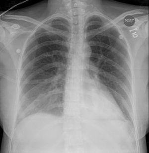Radiografía del tórax. Proyección anteroposterior que muestra opacidades de la ocupación alveolar bilateral con incremento de la vasculatura pulmonar sugestiva del edema pulmonar.