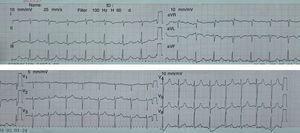 Electrocardiograma de 12 derivaciones con taquicardia sinusal (110/min), sin otras alteraciones significativas.