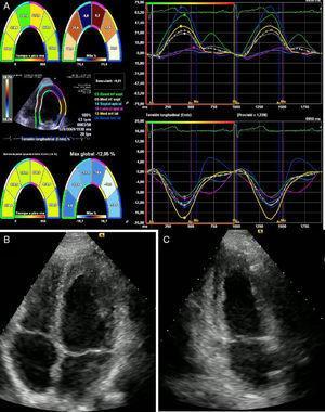 Ecocardiograma transtorácico. A: Strain miocárdico. B: Apical cuatro cámaras. C: Apical dos cámaras. Se observa una contractilidad normal, sin disfunción del ventrículo izquierdo con una fracción de eyección del 62%.