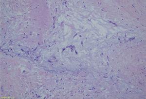 Estudio anatomopatológico de la pieza quirúrgica que informó: mixoma cardiaco, no evidencia de malignidad, muestra células de núcleos ovoides a redondos, monomórficos, sin atipia con citoplasma amplio, eosinófilos que se disponen en cordones y nidos, matriz mixoide con áreas fibrosas, con hemorragia y frecuentes histiocitos, actividad mitótica menor a 1 en 10 campos de alto aumento.