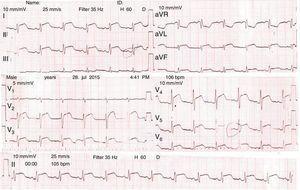 EKG del ingreso.