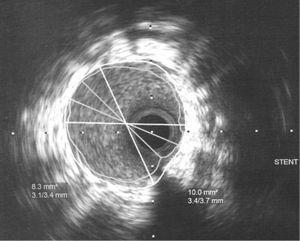 Imagen ultrasonográfica final.