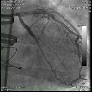 Imagen angiográfica final.