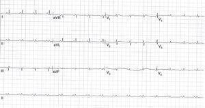 Electrocardiograma de 12 derivaciones que muestra el ritmo sinusal con frecuencia cardiaca de 95 lpm, eje normal y trastorno difuso de la repolarización. Los hallazgos principales son los bajos voltajes de forma generalizada y la ausencia del fenómeno de alternancia eléctrica.