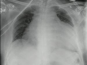 Radiografía del tórax en proyección AP con aumento marcado de la silueta cardiaca, espacios pleurales libres y sin infiltrados parenquimatosos.