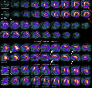 Estudio isotópico de la perfusión miocárdica con 99mTc-MIBI en fases post-estrés farmacológico con dipiridamol intravenoso y reposo. Imágenes correspondientes a los ejes cortos (A), eje largo vertical (B) y eje largo horizontal (C) mostrando en las filas superiores las imágenes adquiridas posterior al estrés farmacológico y en las filas inferiores las imágenes adquiridas posteriores al reposo. En el estudio se observa la morfología irregular del ventrículo izquierdo por cardiomiopatía conocida. Además, se observa la hipocaptación de tipo reversible e indicativa de la isquemia en el ápex, el segmento apical de la cara anterior, en los segmentos apical y medial de las caras inferior e ínfero-lateral así como en la región medio-basal de la cara antero-lateral (flechas rojas). Por otra parte, se observa el defecto de captación severo y fijo entre las dos fases en la región basal de las paredes inferior e ínfero-lateral indicativo de la fibrosis/necrosis (flechas blancas).
