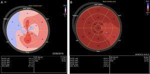 Strain longitudinal global pretratamiento y postratamiento. (A) Alteración en la deformación de la fibra miocárdica principalmente en los segmentos basales y medios de la mayoría de las paredes. (B) Mejoría en la deformidad de la fibra miocárdica de forma global hasta la normalidad.