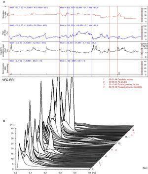 (a) (arriba) Evaluación hemodinámica y autonómica (06/11/2012): predominio simpático, desequilibrio simpático-vagal y disminución de la actividad barorrefleja. LF-dPA: componente de baja frecuencia del análisis espectral de la variabilidad de la presión arterial. HF-RRI: componente de alta frecuencia del análisis espectral de la variabilidad de la frecuencia cardiaca. SBR: sensibilidad del reflejo barorreceptor. (b) (abajo) Análisis espectral de la variabilidad de la frecuencia cardiaca (06/11/2012): predominio del componente simpático. VFC-RRI: variabilidad de la frecuencia cardiaca (intervalo R-R).