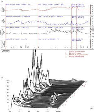 (a) (arriba) Evaluación hemodinámica y autonómica (15/11/2012): predominio simpático, mayor equilibrio simpático-vagal y recuperación de la actividad barorrefleja. LF-dPA: componente de baja frecuencia del análisis espectral de la variabilidad de la presión arterial. HF-RRI: Componente de alta frecuencia del análisis espectral de la variabilidad de la frecuencia cardiaca. SBR: sensibilidad del reflejo barorreceptor. (b) (abajo) Análisis espectral de la variabilidad de la frecuencia cardiaca (15/11/2012): atenuación del componente simpático en reposo. VFC-RRI: variabilidad de la frecuencia cardiaca (intervalo R-R).