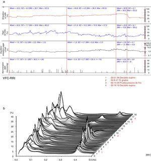 (a) (arriba) Evaluación hemodinámica y autonómica (06/10/2015): predominio vagal en reposo, equilibrio simpático-vagal y actividad barorrefleja adecuada. LF-dPA: componente de baja frecuencia del análisis espectral de la variabilidad de la presión arterial. HF-RRI: componente de alta frecuencia del análisis espectral de la variabilidad de la frecuencia cardiaca. SBR: sensibilidad del reflejo barorreceptor. (b) (abajo) Análisis espectral de la variabilidad de la frecuencia cardiaca (06/10/2015): equilibrio simpático-vagal. VFC-RRI: variabilidad de la frecuencia cardiaca (intervalo R-R).