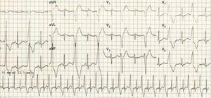 Electrocardiograma ritmo sinusal, extrasístoles ventriculares monomórficas con patrón de bloqueo de rama izquierda con transición tardía y eje inferior derecho.