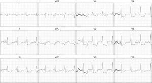 Retorno a ritmo sinusal luego de estimulación con catéter durante estudio electrofisiológico. Se evidencia ritmo sinusal, con PR corto y QRS ancho por presencia de onda delta, configurándose un síndrome de Wolff-Parkinson-White debido a un evento arrítmico previo.