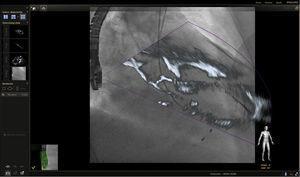 Imagen de fusión eco 3D/fluoroscopia. Se observa paso de la guía a través de la válvula aórtica, alojándose en el ventrículo izquierdo durante procedimiento de TAVI.