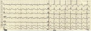 Electrocardiograma de ingreso al servicio de Urgencias. Presentaba bloqueo aurículo-ventricular de primer grado y bloqueo completo de rama derecha del haz de His.