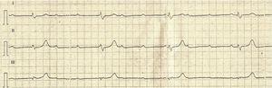 Electrocardiograma control del paciente. Se evidenció disociación AV, que confirmó la presencia de bloqueo AV de tercer grado.