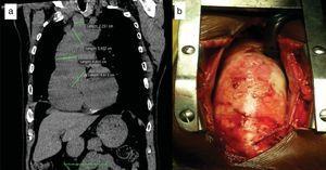 a. Tomografía torácica simple, corte sagital. Medidas de raíz de aorta, aorta ascendente, cayado aórtico y tronco braquiocefálico, con aumento del diámetro a todos los niveles. b. Intervención quirúrgica por esternotomía donde se observa aorta ascendente dilatada y pared aórtica con signos inflamatorios.