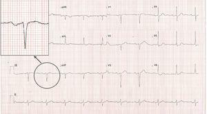 Bloqueo inter-auricular avanzado: onda P ≥ 120 milisegundos, morfología bifásica en las derivaciones inferiores (DII, DIII y aVF).