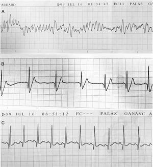 Trazados electrocardiográficos durante el episodio de muerte súbita por cardiotoxicidad aguda por doxorrubicina. A: Fibrilación ventricular. B. Posterior a la cardioversión eléctrica aparece el ritmo sinusal a 75 lpm y QRS ancho. C: Taquicardia sinusal a 140 lpm y QRS estrecho.
