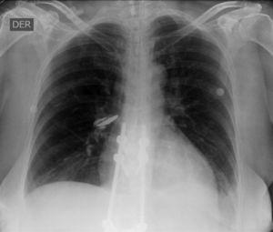 Radiografía de tórax en la que se aprecia obliteración del ángulo costo-diafragmático izquierdo, sugestivo de derrame pleural de apariencia libre. Catéter venoso central. Tubo traqueal central en posición adecuada.
