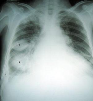 Radiografía posteroanterior de tórax (Día 0, al ingreso) que muestra cardiomegalia, engrosamiento pleural derecho periférico (1) y dos imágenes de tipo masa en tercios medio (2) e inferior (3) derechos. Opacidad intersticial en bases.