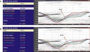 Ejemplos de medidas de strain obtenidos para la vista apical 4 cámaras: (A) Evaluador 1. (B) Evaluador 2. Las líneas coloreadas representan las curvas de strain para cada uno de los seis segmentos regionales del ventrículo izquierdo; la línea punteada representa el strain longitudinal global (SLG) del ventrículo izquierdo.