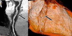 Angiografía coronaria por tomografía computada en mujer de 54 años con dolor torácico agudo de bajo riesgo según puntaje TIMI, que acudió al servicio de urgencia, donde se le realizó examen para descartar origen coronario. A) Placa mixta en arteria coronaria derecha (flecha), B) misma paciente, reconstrucción tridimensional de la misma placa (flecha). Fotografías, gentileza del Dr. Ricardo Baeza, cardiólogo chileno.
